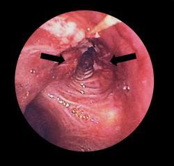 Nádor v prieduške v bronchoskope. Kredit: Wikipedia