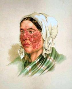 Lupus erythematosus, Atlas der Hautkrankheiten. Volné dílo.