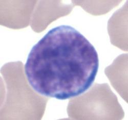 Lymfocyt (bílá krvinka), základ imunitního systému. Lymfocyty vznikají z kmenových buněkv kostní dřeni. T-lymfocyty pak migrují dobrzlíku, kde se dále diferencují. B-lymfocyty se diferencují v kostní dřeni. Foto: Dr Glenn Littel, CC BY-SA 3.0.