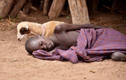 Etiópske dieťa s maláriou. Autor: Rod Waddington, Wikimedia org. CC BY-SA 2.0