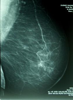 Ukázka mammogramu prsu v ML projekci. Po vakcinaci se u mnoha žen na snímku zmnoží řada různě velkých světlých lokalit, které toto vyšetření nedovoluje odlišit od ložisek šířící se rakoviny. Kredit: volné dílo.