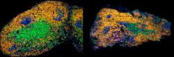 Porovnání lymfatické uzliny mladé (vlevo) a stárnoucí myšky (vpravo) v čase čtrnáct dní po imunizaci.B buňky jsou obarveny žlutě, množící se buňky zárodečných center modře. T buňky jsou zobrazeny zeleně. Kredit: Stebegg a kol, eLife, 2020