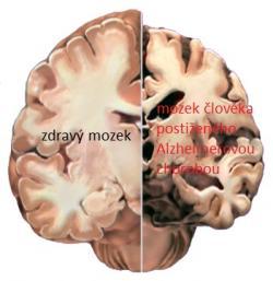 """Alzheimerova choroba doslova ukusuje z lidského mozku a postupně připravuje  člověka o důležité kognitivní a později i motorické schopnosti. Mění povahu, radost, a zájem mění na úzkost a apatii. Dalo by se říct, že mu krade """"duši"""". A je to nejrozšířenější neurodegenerativní onemocnění obírající lidi o hezký podzim života."""
