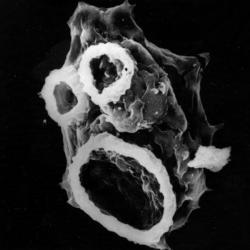 Střezte se neglerie! Emotivní SEM snímek neglerie izolované zčlověka, snápadnými strukturami takzvaných amébastomů, používaných neglerií při krmení. Kredit: Francine Marciano-Cabral / Virginia Commonwealth University.