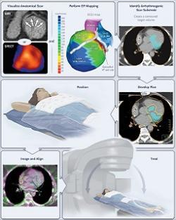 Zostavenie liečebného plánu pre stereotaktickú radiačnú abláciu arytmogénneho substrátu je o niečo zložitejšie: ako vidno na obrázkoch hore, výsledok EKG mapovania (VT epicardial exit site) sa najskôr musí preniesť do zobrazenia srdca, získaného MRI alebo SPECT vyšetrením (identify arrhytmogenic scar substrate). Kredit: Phillip S. Cuculich, et al.: NEJM, 2017. Figure 1 k otevření v článku ZDE.