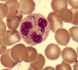 Neutrofilní granulocyt - buňka imunitního systému schopná zasáhnout proti bakteriím ihned a bez signálů od jiných buněk. Má dostatečné vybavení, aby nás ochránil i před kontaminací nanografenem. Barveno metodou May-Grünwald-Giemsa-Romanowski.(Kredit: Tommaso Leonardi, en.wikipedia).