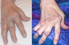 Arthritis rheumatica na kloubech ruky. (Kredit: National Institutes of Health) http://nihseniorhealth.gov/rheumatoidarthritis/whatisrheumatoidarthritis/01.html