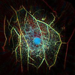 Snímek cévní struktury uvnitř prsu získaného skenováním pomocí fotoakustické počítačové tomografie.  Kredit: Caltech