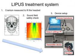 Přístroj na léčbu lidského mozku metodou LIPUS. Snad zatím slouží jenom ke klinickým testům a snad je provádí zcela nezávislý tým. Kredit: Tohoku University.