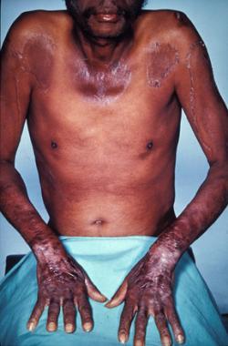Pellagra (česky pelagra) je nemoc z nedostatku niacinu, respektive aminokyseliny tryptofanu. I v 21. století se s ní ti nejchudší z chudých musejí potýkat.   (Kredit Herbert L. Fred, MD, Hendrik A. van Dijk, volné dílo)