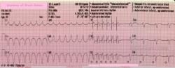"""""""overdrive"""": kardiostimulátor vydal sériu 6 rýchlych stimulačných impulzov, čím """"predbehol"""" arytmiu a prevzal riadenie činnosti srdca, potom začal pracovať ako kardiostimulátor s normálnou frekvenciou (posledné 4 údery na zázname)  (Kredit:  Anti-tachycardia Function of ICD, ECG Guru Instructor Resources)"""