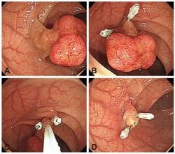 Kolonoskopické odstránenie polypu po zaškrtení jeho stopky svorkami - bez krvácania po výkone. Kredit: Boo SJ, et al.,Clin Endosc (2012)