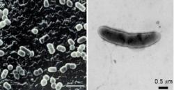 Prevotellagramnegativní anaerobní fermentující tyčky (vlevo) se od  Oscillibacteru vzhledově prakticky neliší. Obě bakterie produkují metabolity tlumící ve stěně střeva množení buněk Th17. K Kredit:(NITE NBRC) 電子顕微鏡写真 飯野