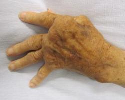 Alzheimerova choroba se odborníkům jeví stále podobnější jiným degenerativním onemocněním, jakým je například revmatoidní arthritida. Oba typy mají co do činění s popletenou imunitou spouštějící chronický zánět. Ten pak jako finalista v postižené lokalitě vše završí destrukcí tkáně a ztrátou funkčnosti orgánu. (Kredit: James Heilman, MD, Wikipedia CC BY-SA 3.0)