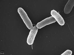 Salmonely. Ale které? Břišního tyfu? Paratyfu? NTS salmonely? Nebo snad ty rezistentní na antibiotika? (Kredit: Volker Brinkmann, Max Planck Institute for Infection Biology.)