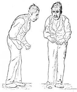 Parkinsonovu chorobu znal už i starověk. Odborně ji popsal ale až v roce 1817londýnskýlékařJames Parkinson, po němž zdědila jméno. Obrázek je z knihy sira Williama Richarda Gowerse z roku 1886. Dnes už postihuje zhruba každého tisícího člověka a situace se dál zhoršuje.