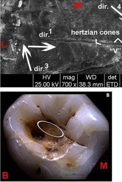 Důkazy boje se zubním kazem v době pozdního paleolitu odhalil elektronový skenovací mikroskop i na stoličkách. Tehdejší vrtací technika zanechala v okolí otvorů ve sklovině a zubovině řadu vrypů. Autorem obrázku je Gregorio Oxilia. Ve větším rozlišení a celou řadou detailů, je zde.