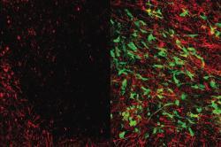 Mikroskopický snímek mrtvicí poškozené tkáně bílé hmoty mozku (vlevo). Vpravo je snímek stejně poškozené bílé hmoty jedince, který byl léčen aplikací gliových buněk.Dobře viditelné jsou rozdíly v přítomnosti myelinu (červeně). Myelin je látka, která chrání neurony a jejich spoje. Mrtvice a demence se ztrátou myelinu vyznačují. Terapie gliovými buňkami (zelené) ztracený myelin a mozkové spoje obnovuje. Kredit: UCLA Broad Stem Cell Research Center /Science Translational Medicine.