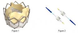 Katétrom zavádzaná, rozvinuteľná umelá aortálna chlopňa. Kredit: www.lcandva.co.uk
