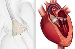 """Zavedenie protézy aortálnej chlopne pomocou katétra (TAVR): nefunkčná zúžená aortálna chlopňa sa pomocou balónika """"roztrhne"""" a na jej miesto sa vsadí rozvinutá protéza. Kredit: Jeff Zagoudis, DAIS."""