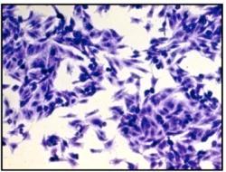 Mycoplasma genitalium je také extra nicotným organismem. Nemá už ani svou vlastní buněčnou stěnu. Neobejde se proto bez vláskových buněk krycí tkáně urogenitálního traktu. Důvěrně se s jejím svěděním, pálením či výtokem, seznámí 75 % z nás. Někteří z nás si s jejich pomocí vykoledujeme i zánět kloubů (artritidu). (Kredit: Sebastian R. Schmidl, PloS ONE, 2011)