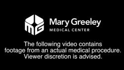 Video z koronárnej angiografie, bez potreby angioplastiky.