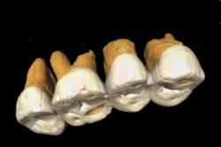 Zuby nového druhu člověka, který žil na Filipínách před 50 000 lety.  Kredit F. Détroit et al. Další obrázky zde. https://www.nationalgeographic.com/science/2019/04/new-species-ancient-human-discovered-luzon-philippines-homo-luzonensis/.