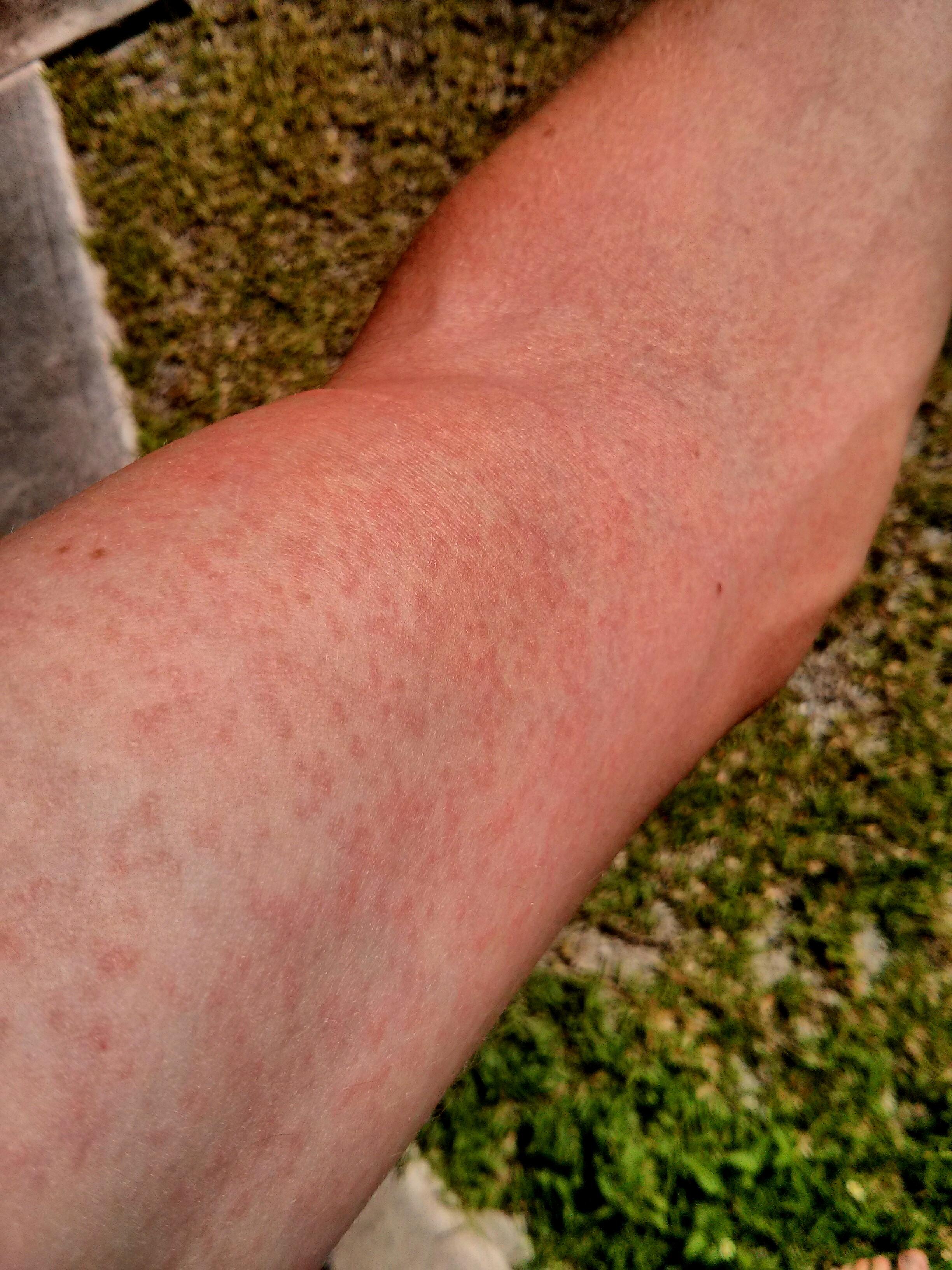 Vyrážka na paži po infekci virem zika. (Kredit: Wikipedie CC BY-SA 3.0)