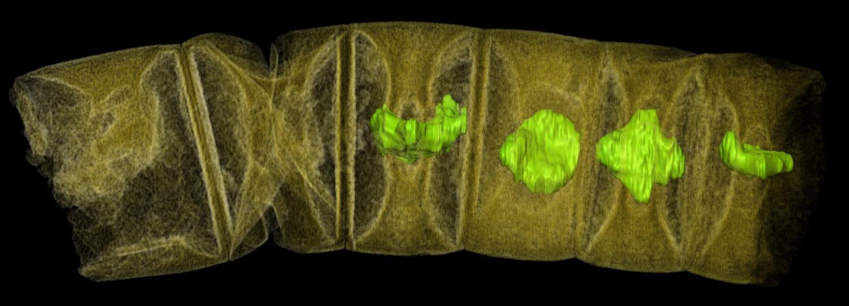 Snímek fosilie odpovídající stonku červené řasy pořízený tomografem (Synchrotron-Radiation X-ray Tomographic Microscopy).Obraz je elektronicky dobarven.Kredit: Stefan Bengtson et al. 2017)
