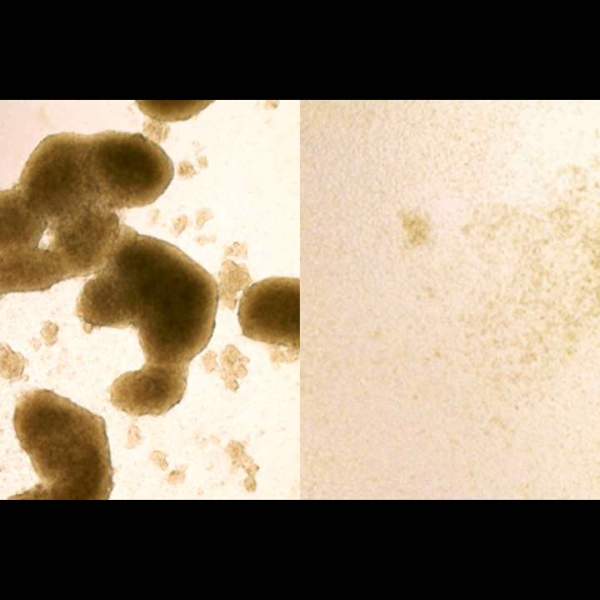 Vlevo kmenové buňky glioblastomu, vpravo situace po akci ziky. Kredit: Zhe Zhu / WUSTL.