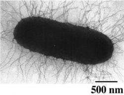 Baktéria escherichia coli (e. coli) napadnutá bakteriofágom m13. v